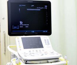 超音波診断装置(2)